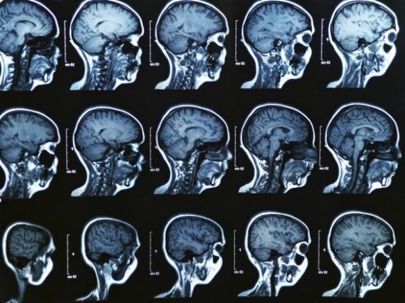 brain-e1432865205485